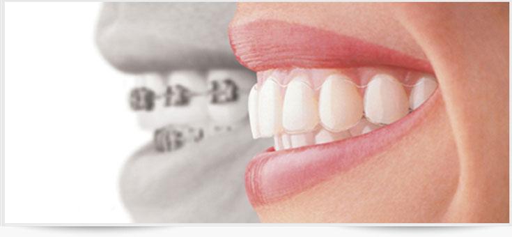 Dental Clinic Chennai - Rayens Dental Clinic