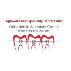 Dr. Chintan Agrawal | Braces Doctor in Ahmedabad