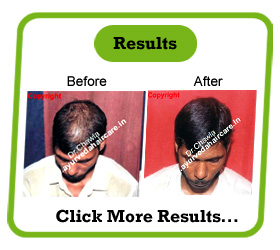 Ayurveda Hair Care - Ayurvedic Treatment for Alopecia Universalis